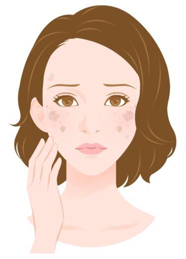 顔や体にできる色素斑…いわゆる「シミ」について。